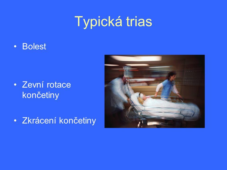 Staří pacienti špatně snášejí imobilizaci na lůžku •Rizika: •-hypostatická pneumonie •-kardiorespirační selhání •-dekubity •Příprava proto má být energická, ale krátkodobá •-zavodnění •-preventce TEN •-kompensace diabetu •-případná tonisace myokardu