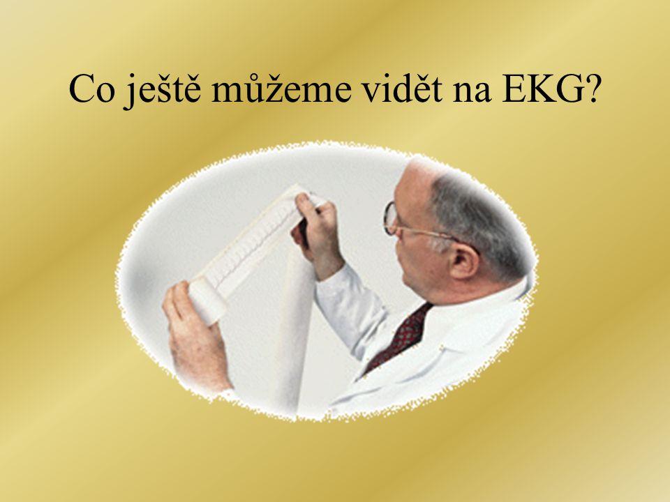 Co ještě můžeme vidět na EKG?
