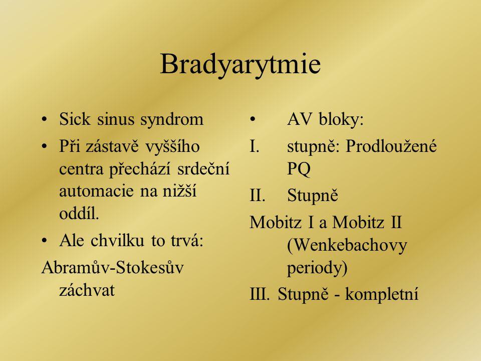 Bradyarytmie •Sick sinus syndrom •Při zástavě vyššího centra přechází srdeční automacie na nižší oddíl. •Ale chvilku to trvá: Abramův-Stokesův záchvat