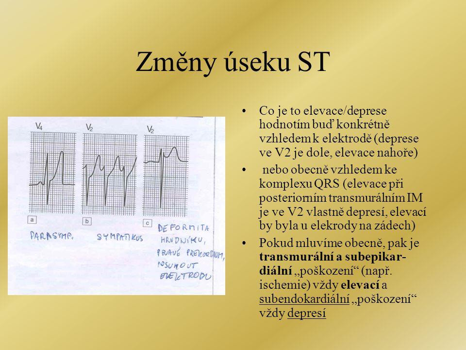 Změny úseku ST •Co je to elevace/deprese hodnotím buď konkrétně vzhledem k elektrodě (deprese ve V2 je dole, elevace nahoře) • nebo obecně vzhledem ke