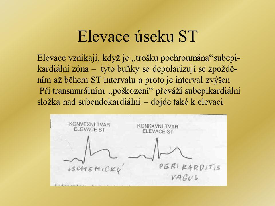 """Elevace úseku ST Elevace vznikají, když je """"trošku pochroumána""""subepi- kardiální zóna – tyto buňky se depolarizují se zpoždě- ním až během ST interval"""
