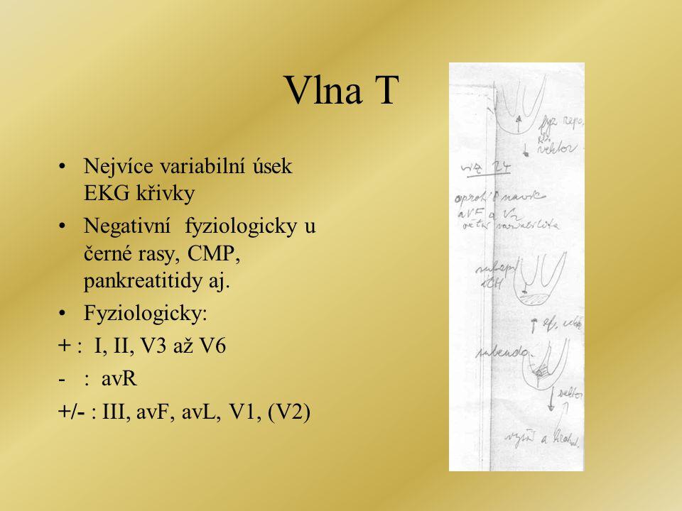 Vlna T •Nejvíce variabilní úsek EKG křivky •Negativní fyziologicky u černé rasy, CMP, pankreatitidy aj. •Fyziologicky: + : I, II, V3 až V6 -: avR +/-