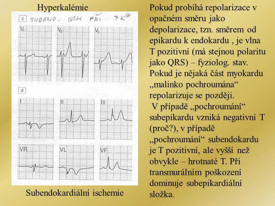 Subendokardiální ischemie HyperkalémiePokud probíhá repolarizace v opačném směru jako depolarizace, tzn. směrem od epikardu k endokardu, je vlna T poz