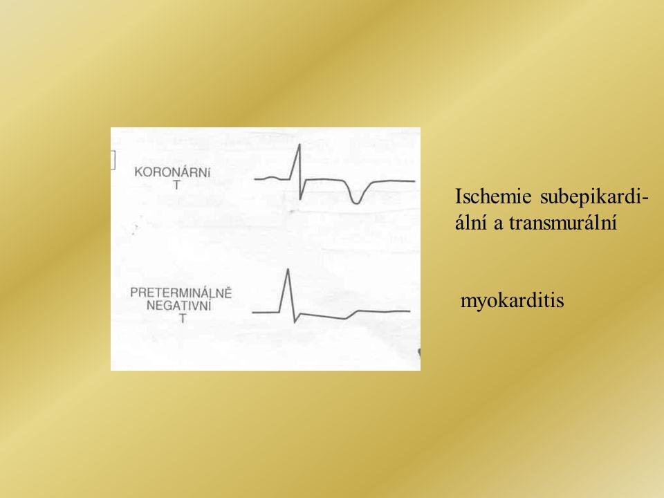 myokarditis Ischemie subepikardi- ální a transmurální