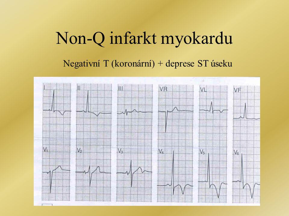 Non-Q infarkt myokardu Negativní T (koronární) + deprese ST úseku