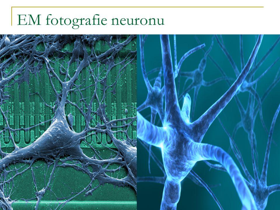 EM fotografie neuronu