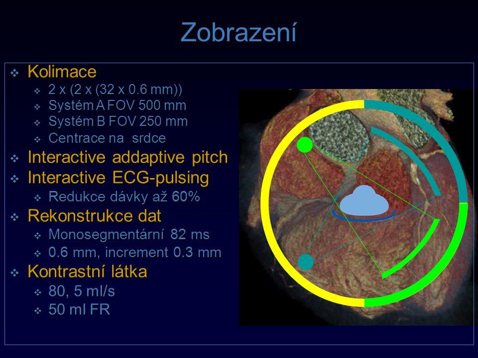 Zobrazení  Kolimace  2 x (2 x (32 x 0.6 mm))  Systém A FOV 500 mm  Systém B FOV 250 mm  Centrace na srdce  Interactive addaptive pitch  Interac