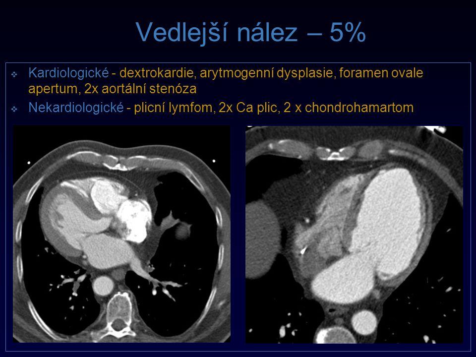 Vedlejší nález – 5%  Kardiologické  Kardiologické - dextrokardie, arytmogenní dysplasie, foramen ovale apertum, 2x aortální stenóza   Nekardiologi