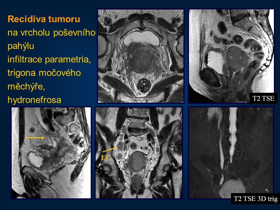 17 Recidiva tumoru na vrcholu poševního pahýlu infiltrace parametria, trigona močového měchýře, hydronefrosa T2 TSE 3D trig T2 TSE LU