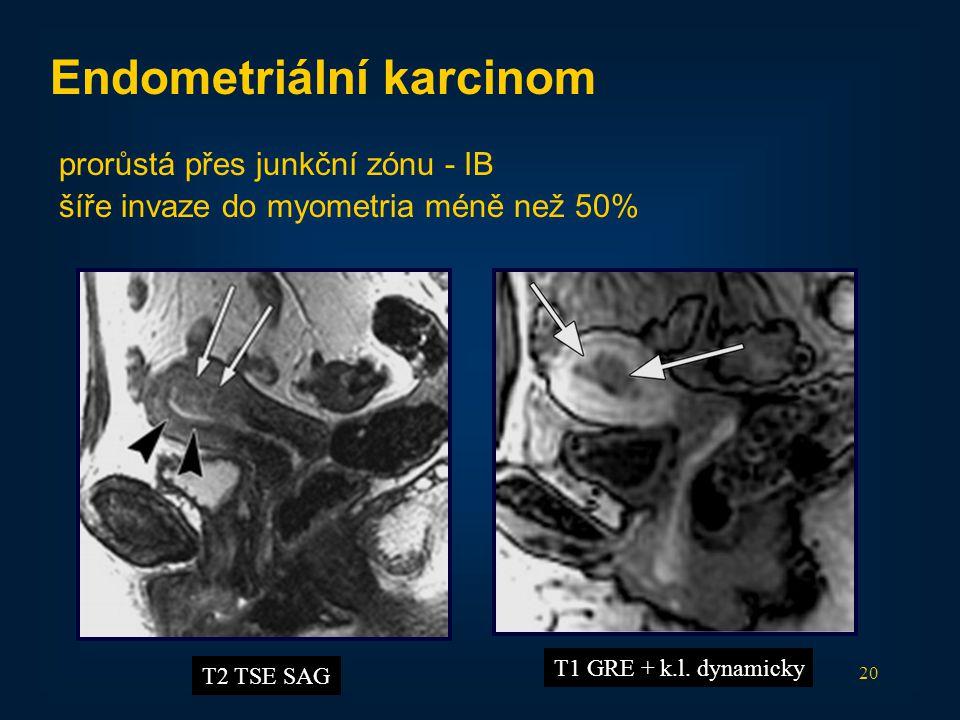 20 Endometriální karcinom prorůstá přes junkční zónu - IB šíře invaze do myometria méně než 50% T2 TSE SAG T1 GRE + k.l. dynamicky