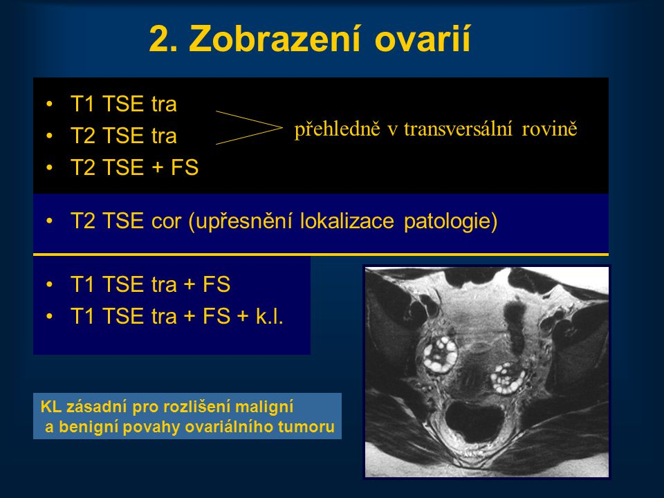 21 2. Zobrazení ovarií •T1 TSE tra •T2 TSE tra •T2 TSE + FS •T2 TSE cor (upřesnění lokalizace patologie) •T1 TSE tra + FS •T1 TSE tra + FS + k.l. přeh