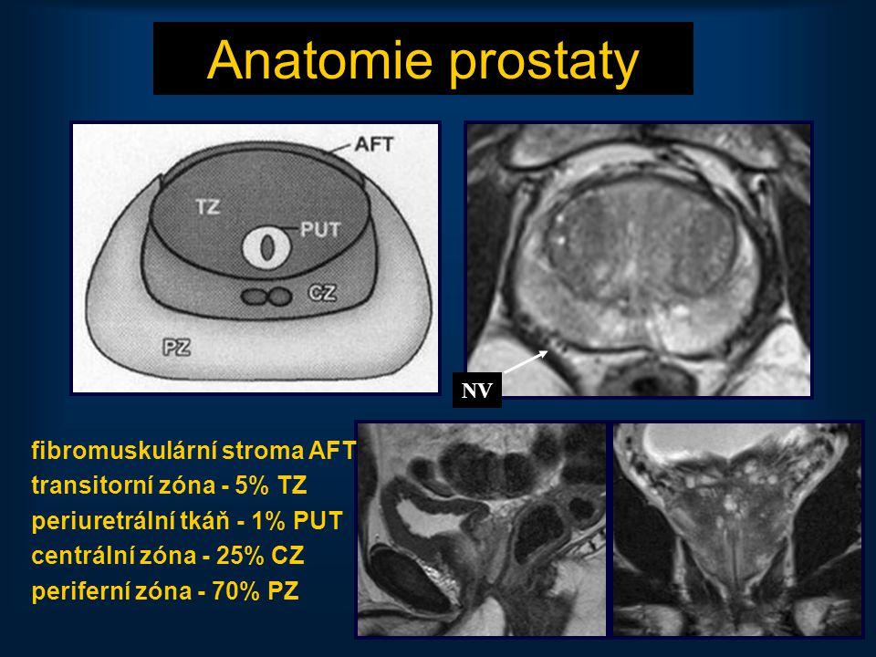 25 Anatomie prostaty fibromuskulární stroma AFT transitorní zóna - 5% TZ periuretrální tkáň - 1% PUT centrální zóna - 25% CZ periferní zóna - 70% PZ N