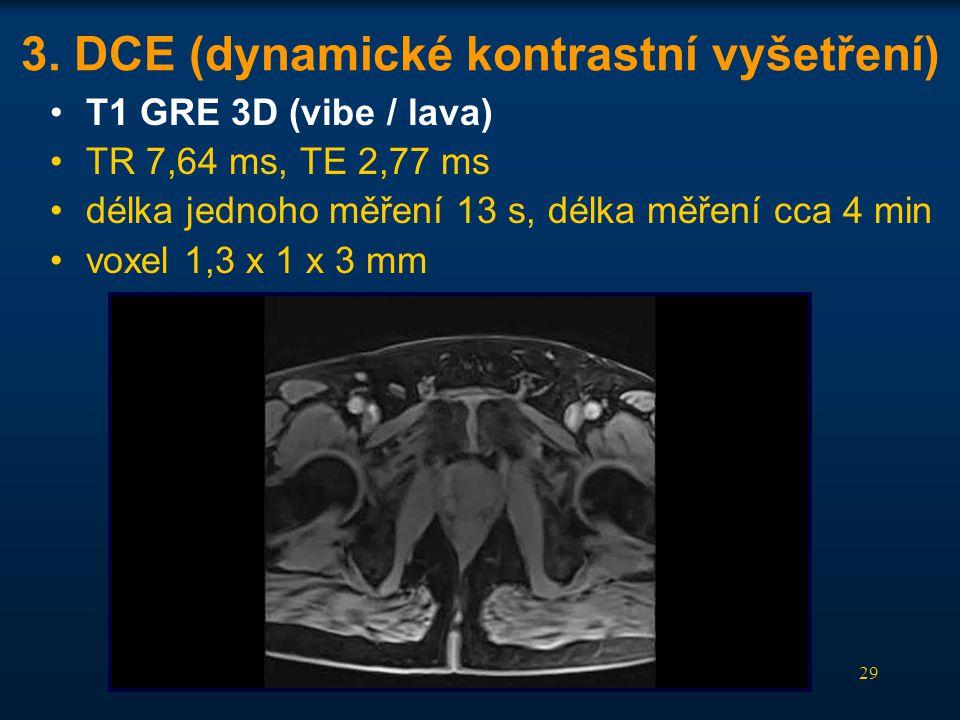 29 3. DCE (dynamické kontrastní vyšetření) •T1 GRE 3D (vibe / lava) •TR 7,64 ms, TE 2,77 ms •délka jednoho měření 13 s, délka měření cca 4 min •voxel