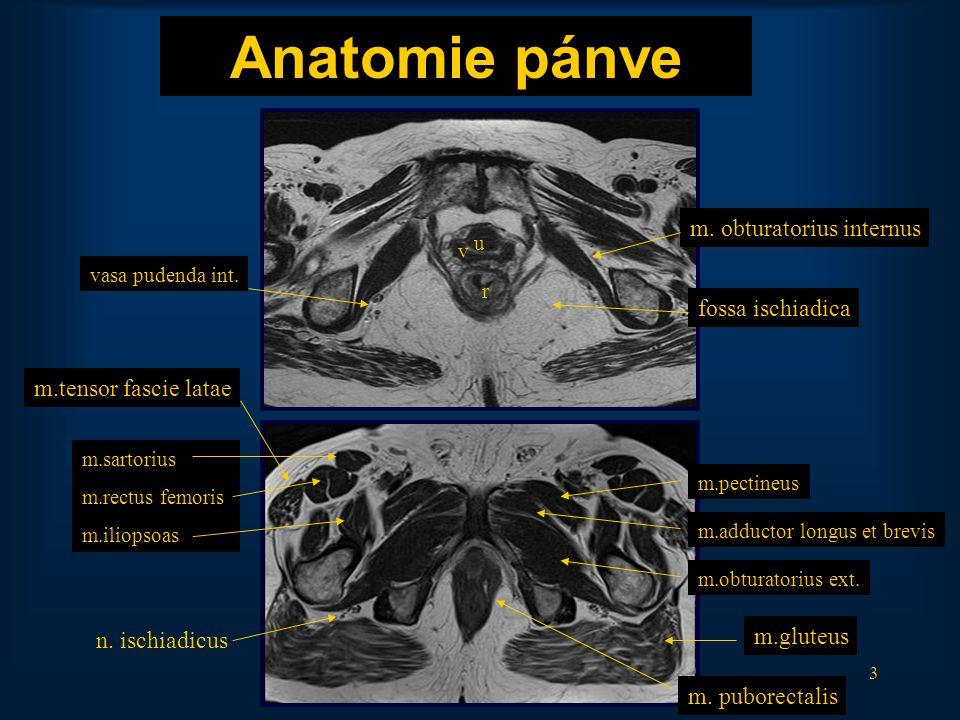 3 Anatomie pánve m. obturatorius internus u v r vasa pudenda int. m.pectineus m.obturatorius ext. m.adductor longus et brevis m.gluteus m.sartorius m.