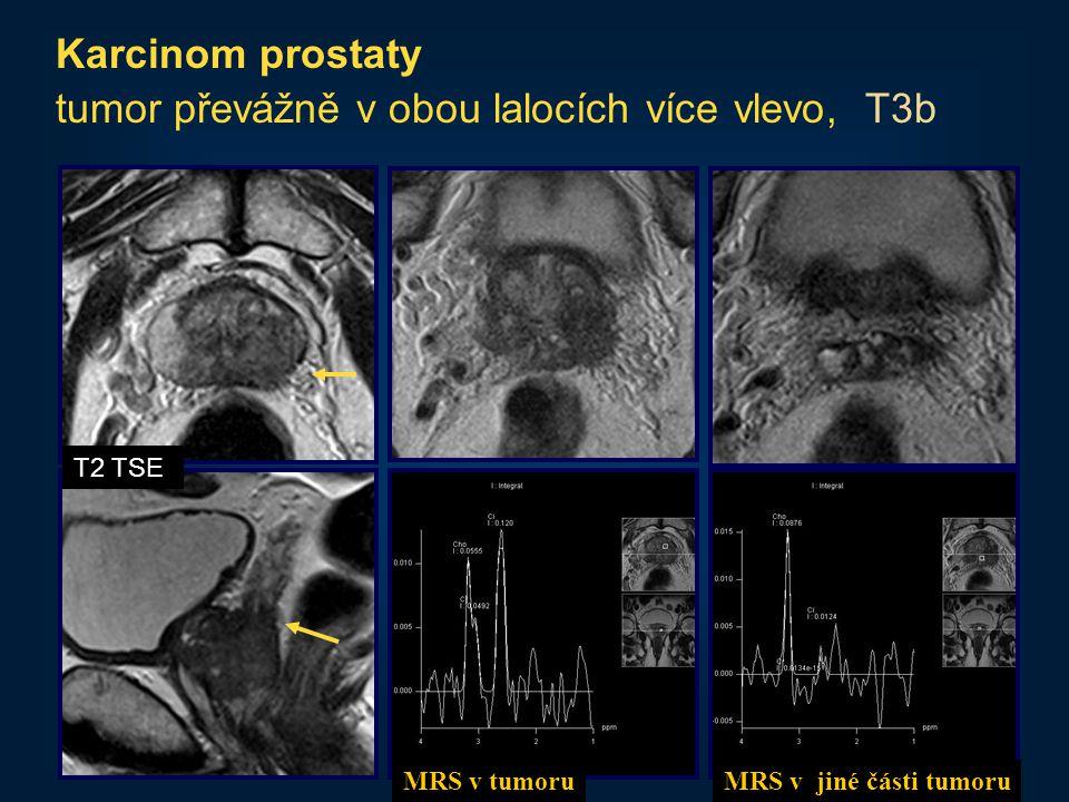 34 Karcinom prostaty tumor převážně v obou lalocích více vlevo, T3b T2 TSE MRS v tumoruMRS v jiné části tumoru