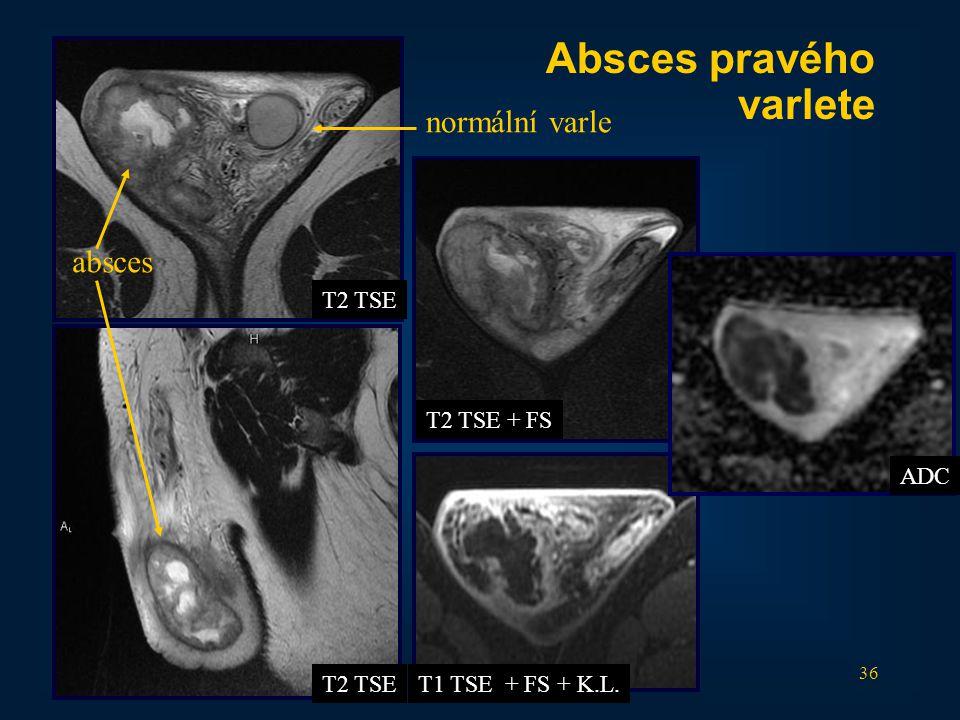 36 T2 TSE T2 TSE + FS T1 TSE + FS + K.L. Absces pravého varlete normální varle absces ADC