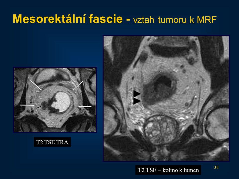38 Mesorektální fascie - vztah tumoru k MRF T2 TSE TRA T2 TSE – kolmo k lumen