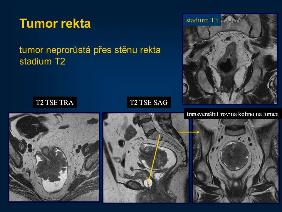 39 Tumor rekta tumor neprorůstá přes stěnu rekta stadium T2 stadium T3 T2 TSE TRAT2 TSE SAG transversální rovina kolmo na lumen
