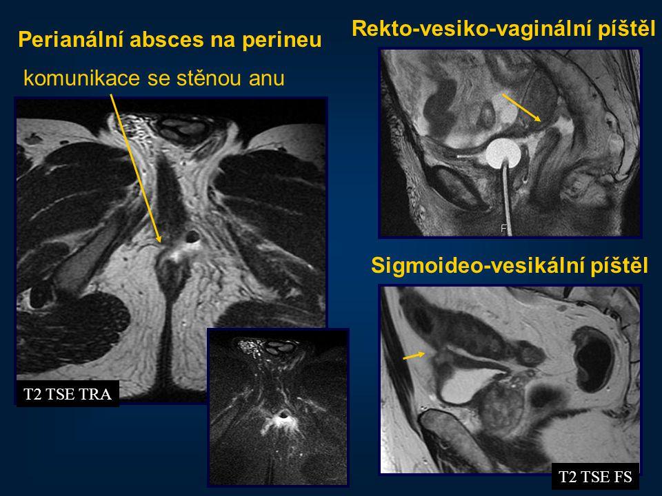 41 Perianální absces na perineu komunikace se stěnou anu T2 TSE TRA T2 TSE FS Sigmoideo-vesikální píštěl Rekto-vesiko-vaginální píštěl