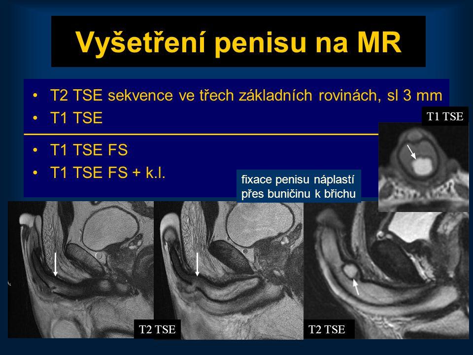42 Vyšetření penisu na MR •T2 TSE sekvence ve třech základních rovinách, sl 3 mm •T1 TSE •T1 TSE FS •T1 TSE FS + k.l. T1 TSE hematom T2 TSE fixace pen