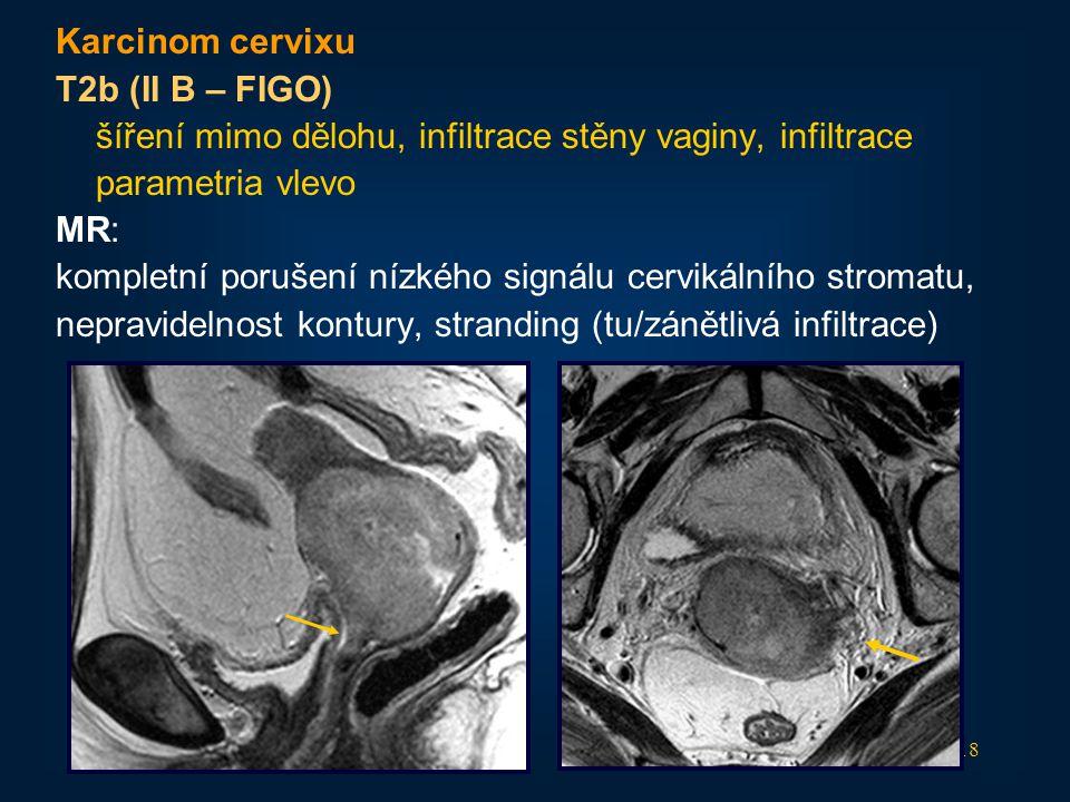 18 Karcinom cervixu T2b (II B – FIGO) šíření mimo dělohu, infiltrace stěny vaginy, infiltrace parametria vlevo MR: kompletní porušení nízkého signálu