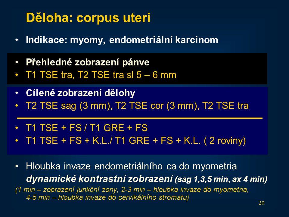 20 Děloha: corpus uteri •Indikace: myomy, endometriální karcinom •Přehledné zobrazení pánve •T1 TSE tra, T2 TSE tra sl 5 – 6 mm •Cílené zobrazení dělo