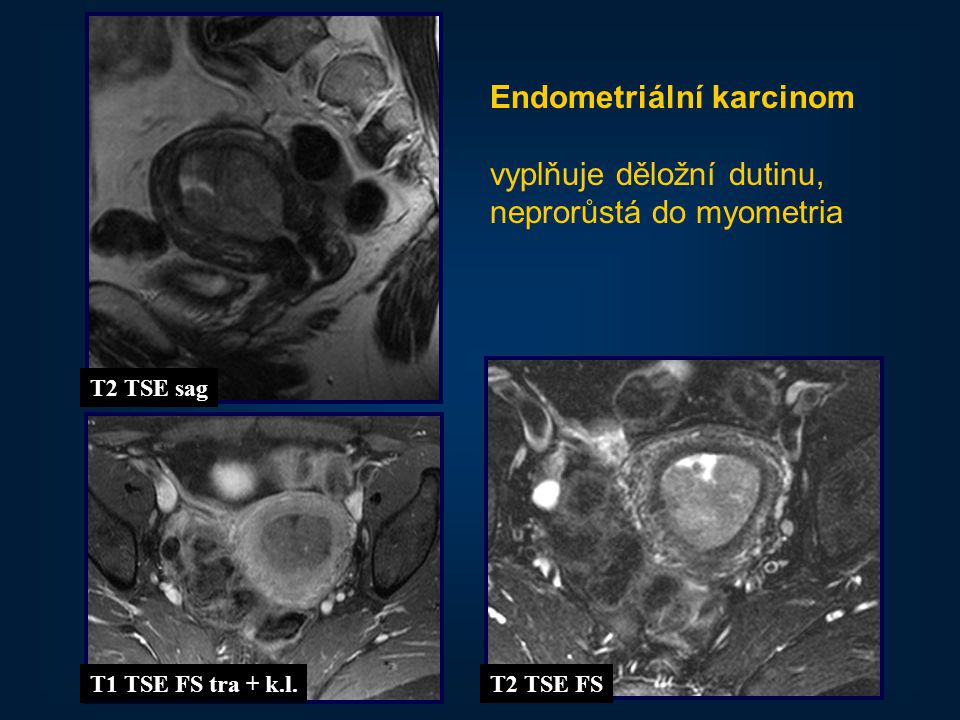 22 Endometriální karcinom vyplňuje děložní dutinu, neprorůstá do myometria T2 TSE sag T1 TSE FS tra + k.l.T2 TSE FS