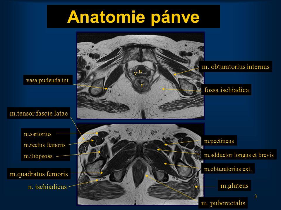 54 Perianální absces na perineu komunikují se stěnou anu T2 TSE TRA T2 TSE Sigmoideo-vesikální píštěl Rekto-vesiko-vaginální píštěl
