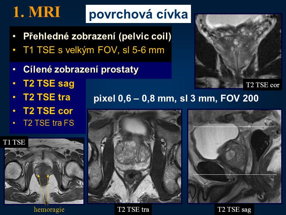 31 •Přehledné zobrazení (pelvic coil) •T1 TSE s velkým FOV, sl 5-6 mm •Cílené zobrazení prostaty •T2 TSE sag •T2 TSE tra •T2 TSE cor •T2 TSE tra FS 1.