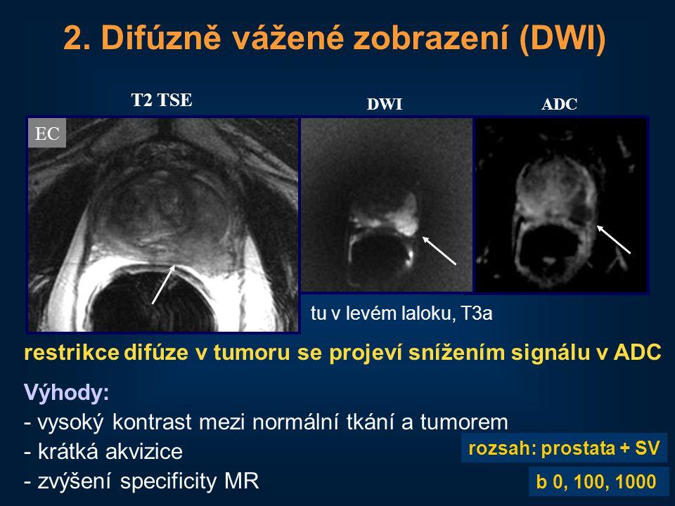 33 2. Difúzně vážené zobrazení (DWI) DWIADC restrikce difúze v tumoru se projeví snížením signálu v ADC Výhody: - vysoký kontrast mezi normální tkání