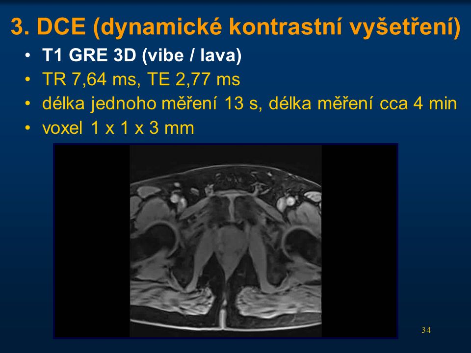 34 3. DCE (dynamické kontrastní vyšetření) •T1 GRE 3D (vibe / lava) •TR 7,64 ms, TE 2,77 ms •délka jednoho měření 13 s, délka měření cca 4 min •voxel