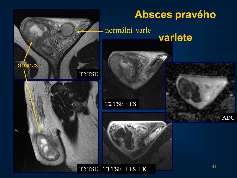 41 T2 TSE T2 TSE + FS T1 TSE + FS + K.L. Absces pravého varlete normální varle absces ADC