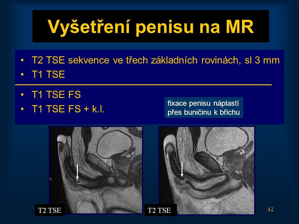 42 Vyšetření penisu na MR •T2 TSE sekvence ve třech základních rovinách, sl 3 mm •T1 TSE •T1 TSE FS •T1 TSE FS + k.l. T2 TSE fixace penisu náplastí př