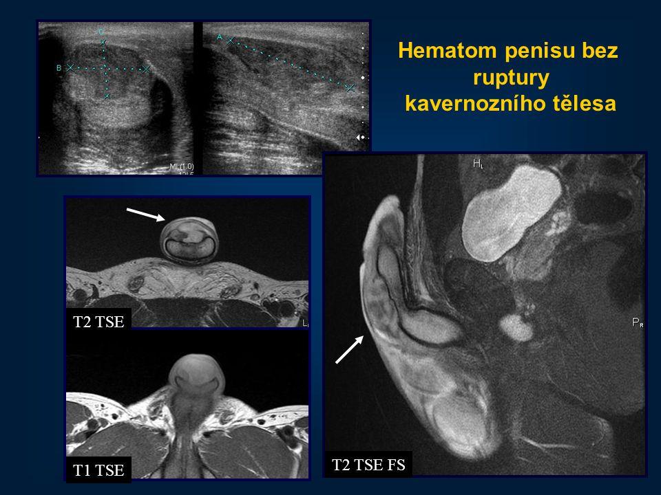 43 Hematom penisu bez ruptury kavernozního tělesa T2 TSE T1 TSE T2 TSE FS