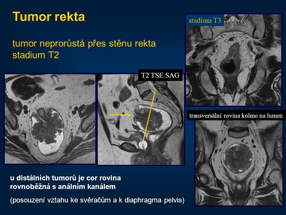 49 Tumor rekta tumor neprorůstá přes stěnu rekta stadium T2 stadium T3 T2 TSE SAG transversální rovina kolmo na lumen u distálních tumorů je cor rovin