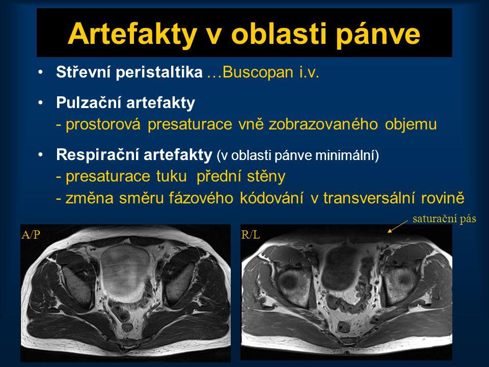 20 Děloha: corpus uteri •Indikace: myomy, endometriální karcinom •Přehledné zobrazení pánve •T1 TSE tra, T2 TSE tra sl 5 – 6 mm •Cílené zobrazení dělohy •T2 TSE sag (3 mm), T2 TSE cor (3 mm), T2 TSE tra •T1 TSE + FS / T1 GRE + FS •T1 TSE + FS + K.L./ T1 GRE + FS + K.L.
