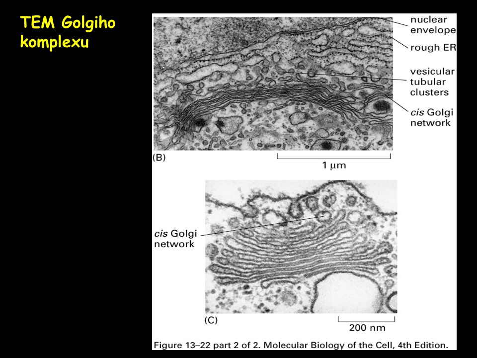 TEM Golgiho komplexu