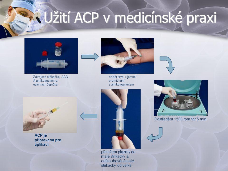 Užití ACP v medicínské praxi Zdvojená stříkačka, ACD- A antikoagulant a uzavírací čepička odběr krve + jemné promíchání s antikoagulantem Odstředění 1