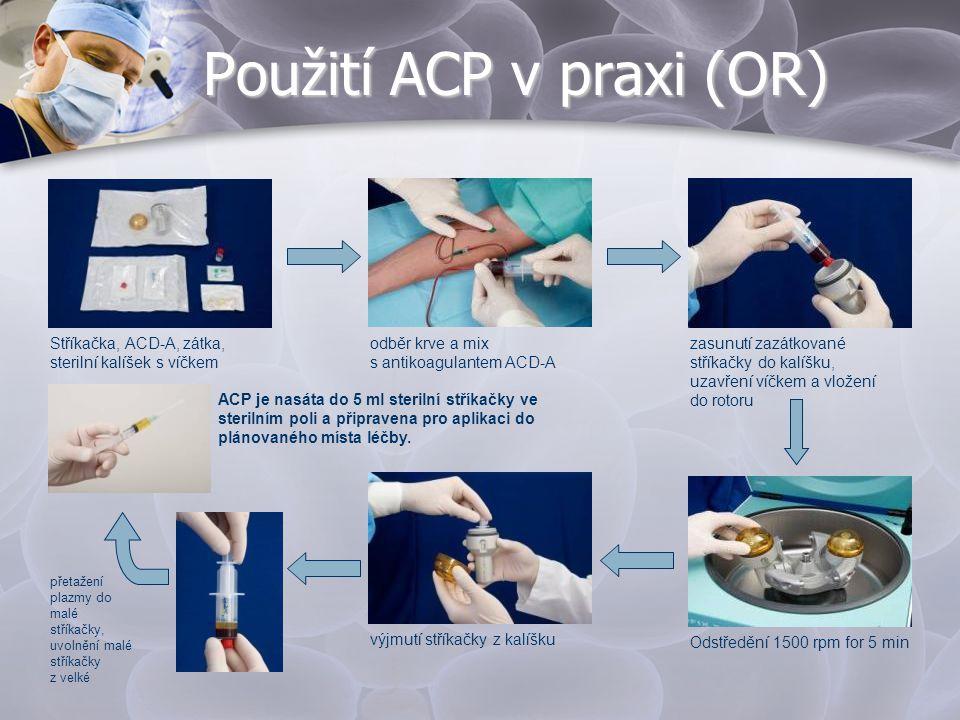 Použití ACP v praxi (OR) odběr krve a mix s antikoagulantem ACD-A přetažení plazmy do malé stříkačky, uvolnění malé stříkačky z velké ACP je nasáta do