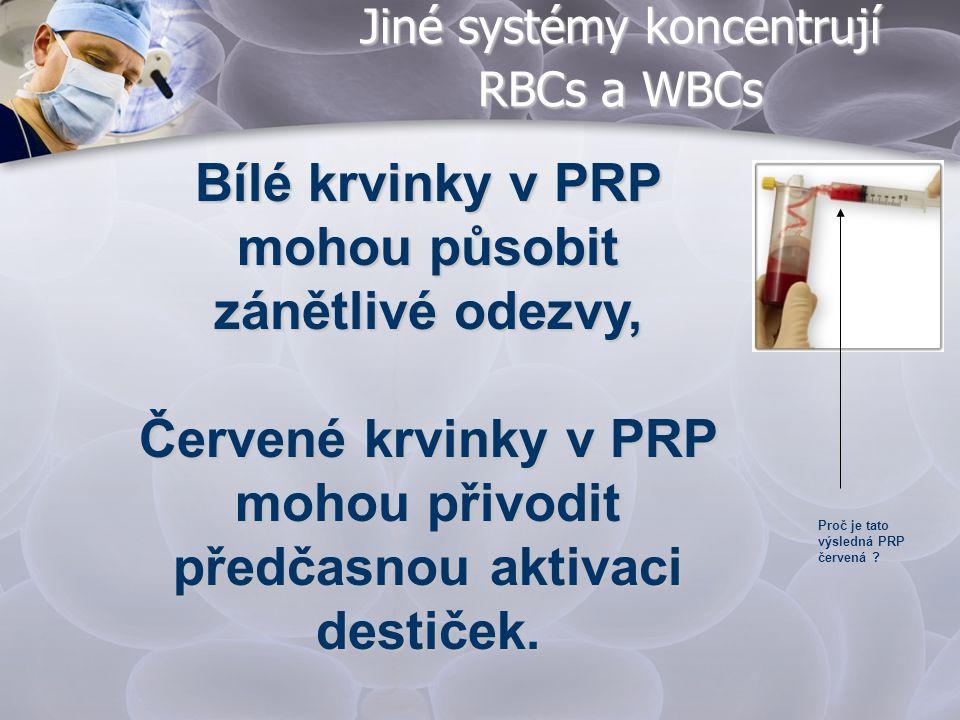 Jiné systémy koncentrují RBCs a WBCs Proč je tato výsledná PRP červená ? Bílé krvinky v PRP mohou působit zánětlivé odezvy, Červené krvinky v PRP moho