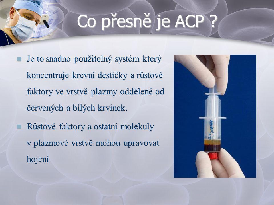 Co přesně je ACP ?  Je to snadno použitelný systém který koncentruje krevní destičky a růstové faktory ve vrstvě plazmy oddělené od červených a bílýc