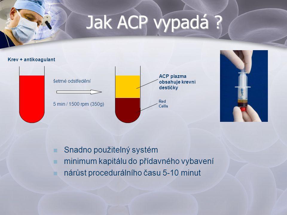 Jak ACP vypadá ? Red Cells ACP plazma obsahuje krevní destičky šetrné odstředění Krev + antikoagulant 5 min / 1500 rpm (350g)  Snadno použitelný syst