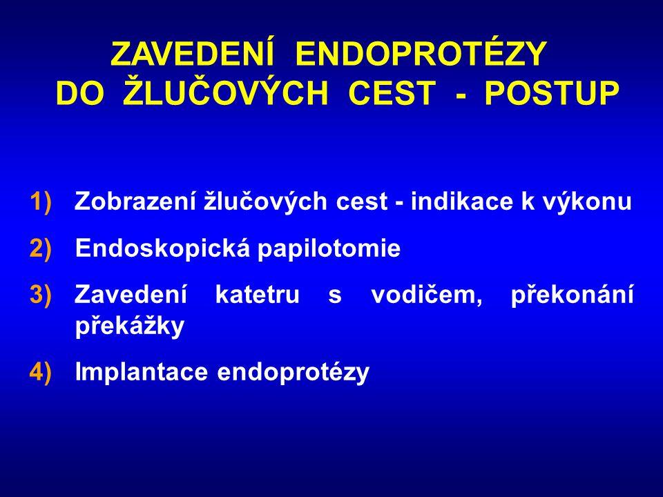 ZAVEDENÍ ENDOPROTÉZY DO ŽLUČOVÝCH CEST - POSTUP 1)Zobrazení žlučových cest - indikace k výkonu 2)Endoskopická papilotomie 3)Zavedení katetru s vodičem