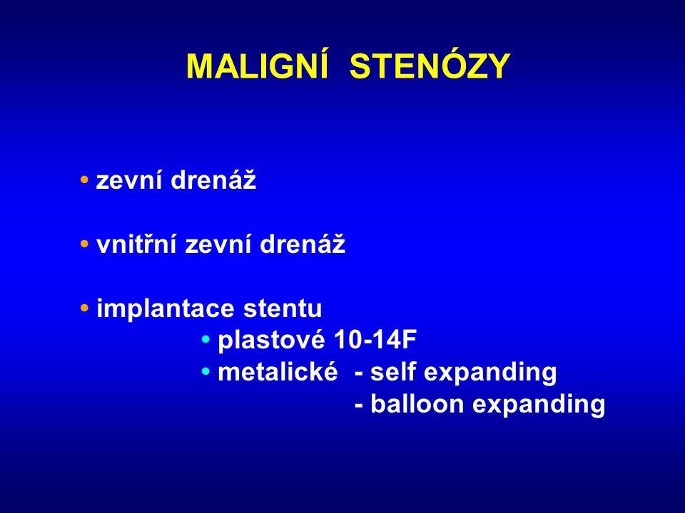 MALIGNÍ STENÓZY • zevní drenáž • vnitřní zevní drenáž • implantace stentu • plastové 10-14F • metalické - self expanding - balloon expanding