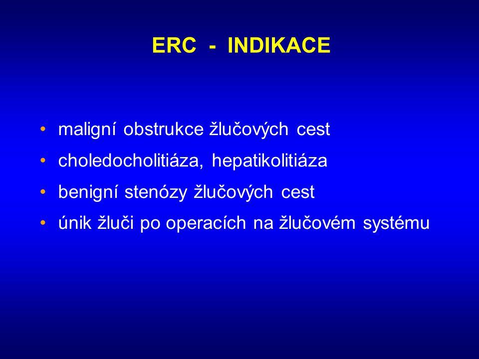 ERC - INDIKACE •maligní obstrukce žlučových cest •choledocholitiáza, hepatikolitiáza •benigní stenózy žlučových cest •únik žluči po operacích na žlučo