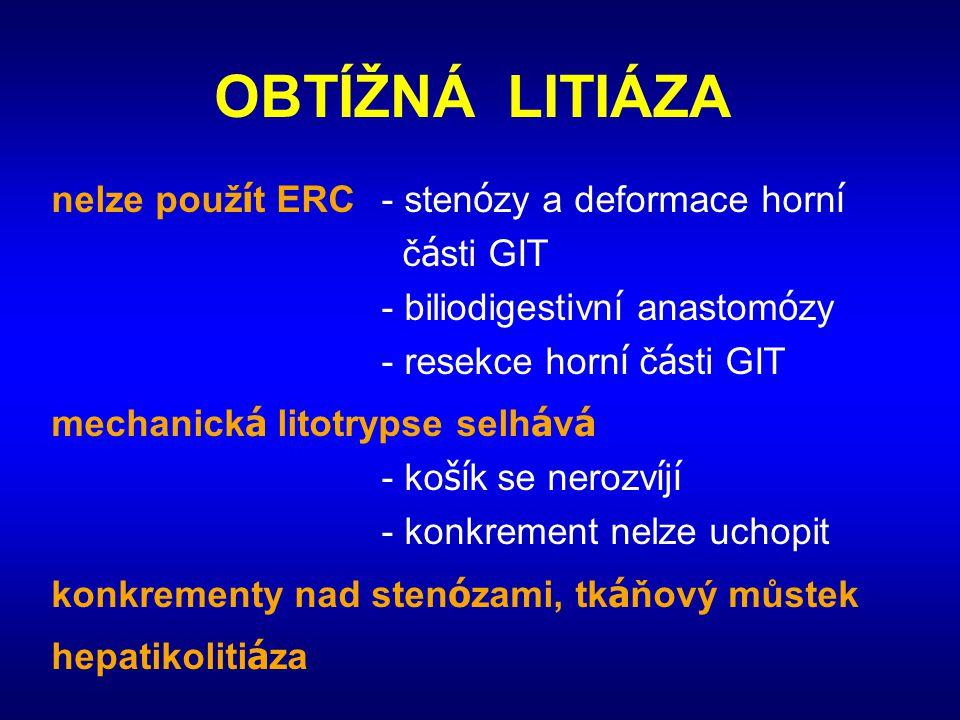 OBTÍŽNÁ LITIÁZA nelze použ í t ERC- sten ó zy a deformace horn í č á sti GIT - biliodigestivn í anastom ó zy - resekce horn í č á sti GIT mechanick á