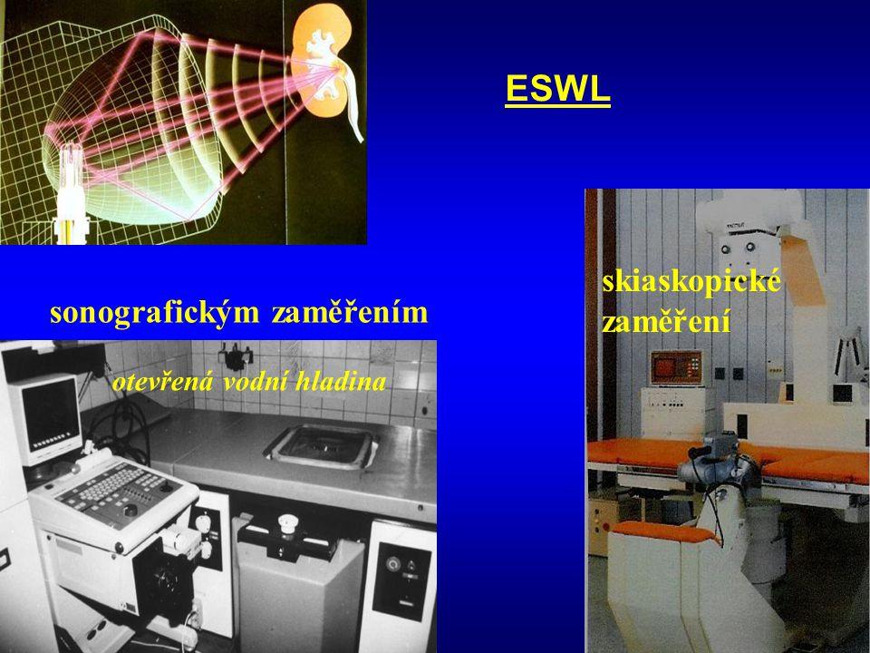 sonografickým zaměřením ESWL otevřená vodní hladina skiaskopické zaměření