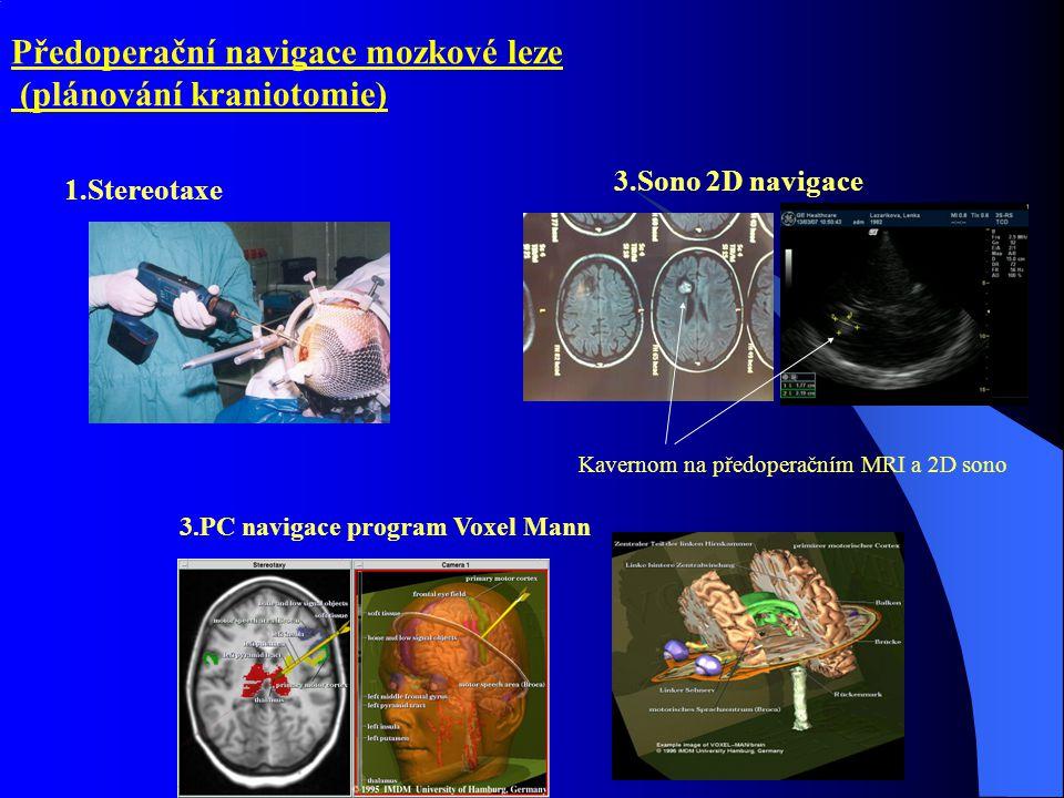 Předoperační navigace mozkové leze (plánování kraniotomie) 1.Stereotaxe 3.Sono 2D navigace 3.PC navigace program Voxel Mann Kavernom na předoperačním