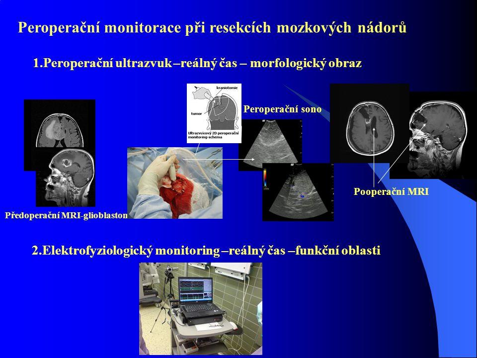 Peroperační monitorace při resekcích mozkových nádorů 1.Peroperační ultrazvuk –reálný čas – morfologický obraz 2.Elektrofyziologický monitoring –reáln