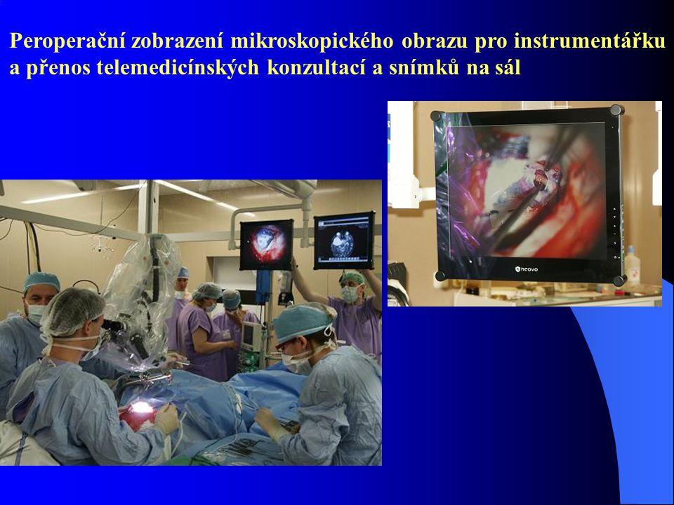 Peroperační zobrazení mikroskopického obrazu pro instrumentářku a přenos telemedicínských konzultací a snímků na sál